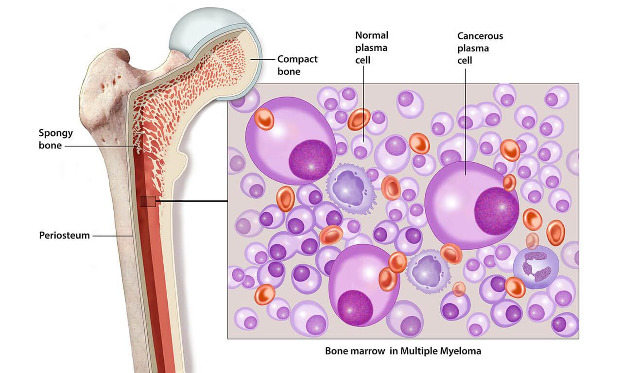 मायलोमा के इलाज में कीमोथेरेपी और बोन मेरो ट्रांसप्लांट बारे में कुछ महत्वपूर्ण जानकारियाँ !