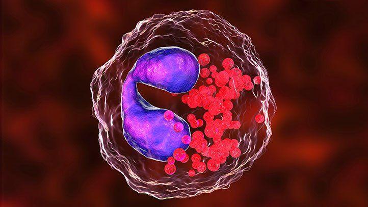 इओसिनोफिलिया: लक्षण और कारण
